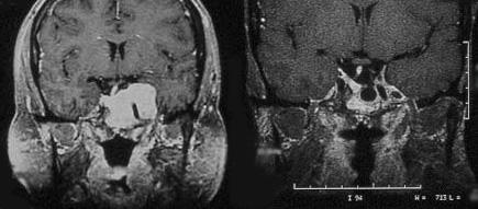Prolactinoma treated with cabergoline