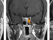 Pituitary MRI showing tumor left behind from a previous surgery, which was then removed at UCSF